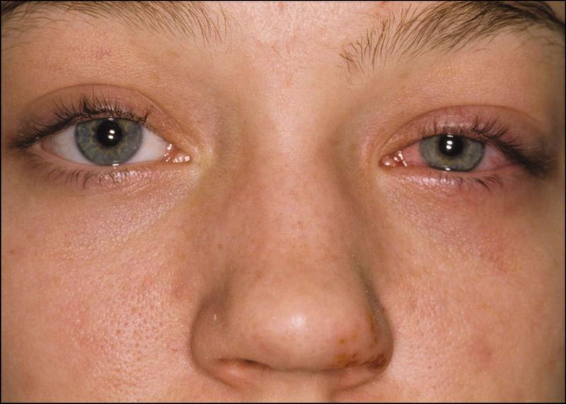 Признаки аллергического конъюнктивита у ребенка