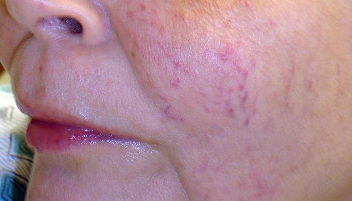 Синюшность кожи лица