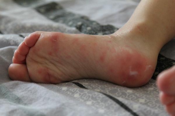 Аллергическая реакция на ступнях ног