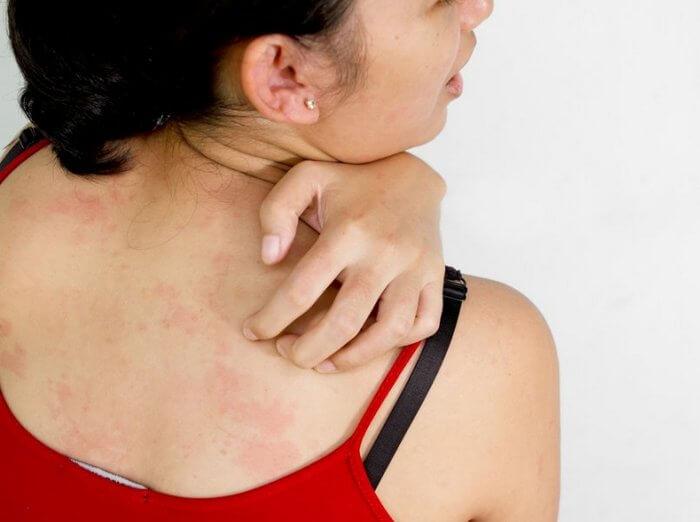 Кожный зуд при аллергии