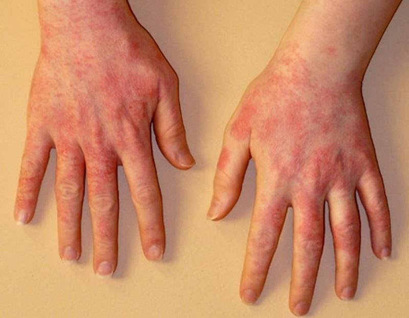 Аллергия на руках при контакте с геранью