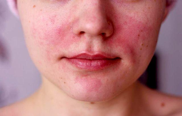 Симптомы аллергии на сигареты
