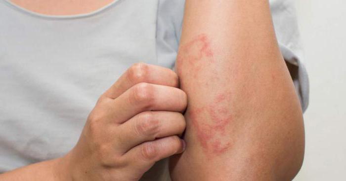 Проявление токсико-аллергического дерматита