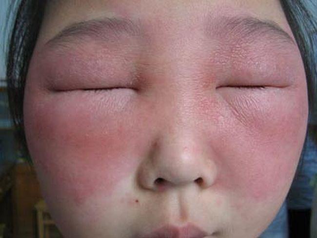 Опухшее лицо при аллергии