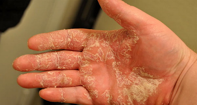 Мозолевидная экзема на руке