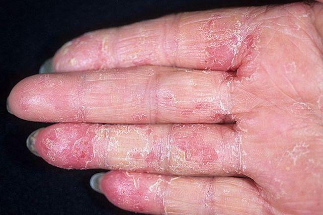 Пальцы, пораженные экземой