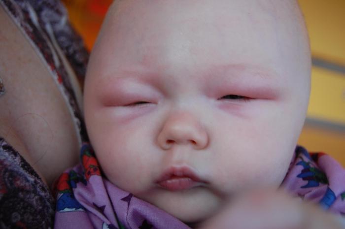 Отек Квинке у младенца