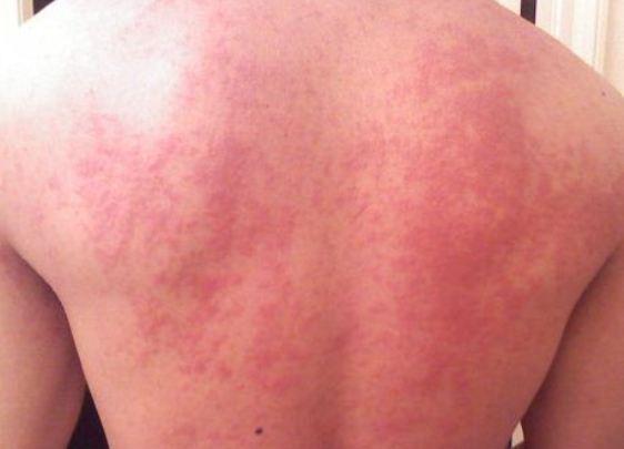 Проявление аллергии на спине