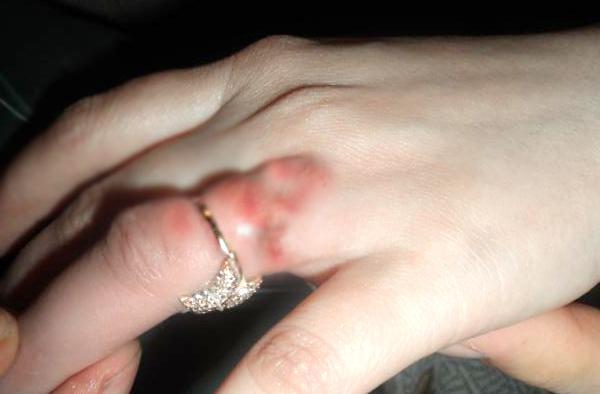 Аллергическая реакция на месте ношения кольца