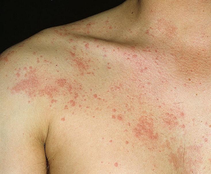 Симптомы холинергической крапивницы