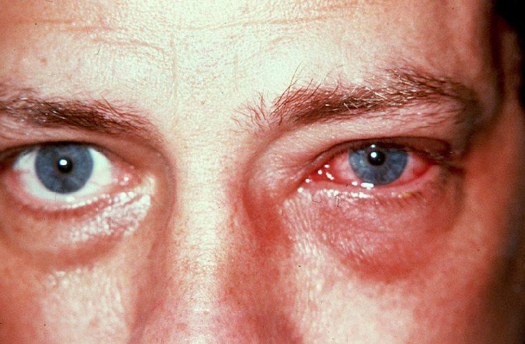 Аллергический конъюнктивит