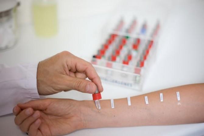 Кожные пробы на аллергию