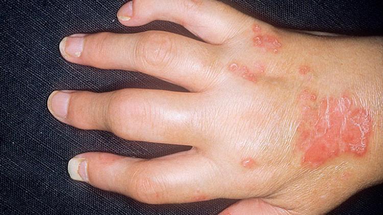 Симптомы артрита на руке