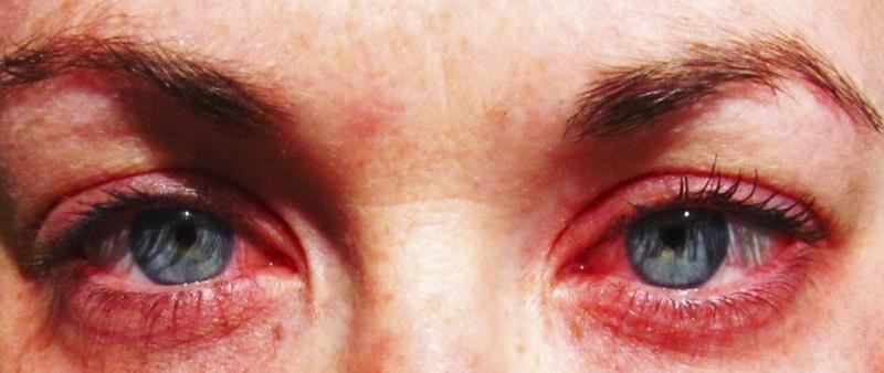 Глаза, пораженные аллергическим конъюнктивитом