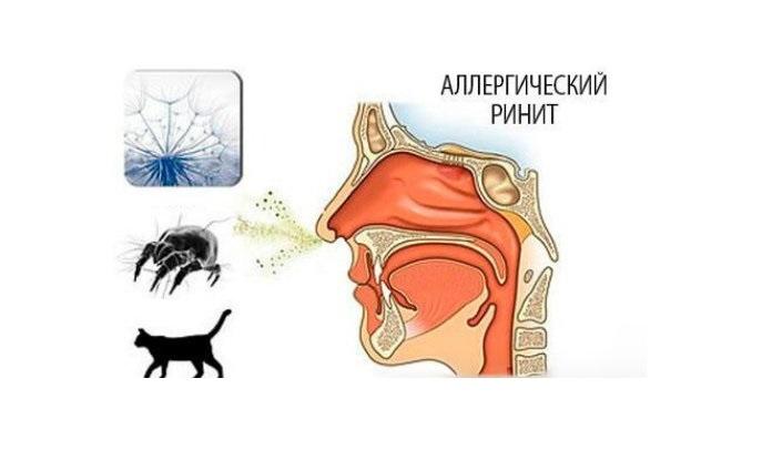 Респираторные расстройства