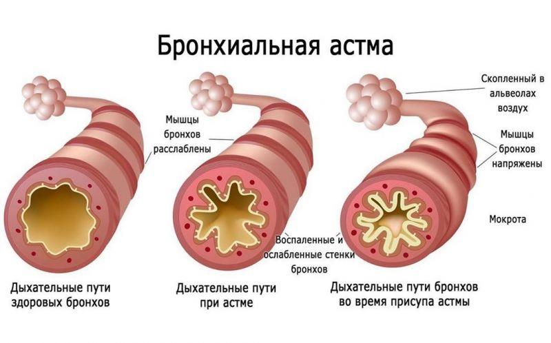 Дыхательные пути при астме