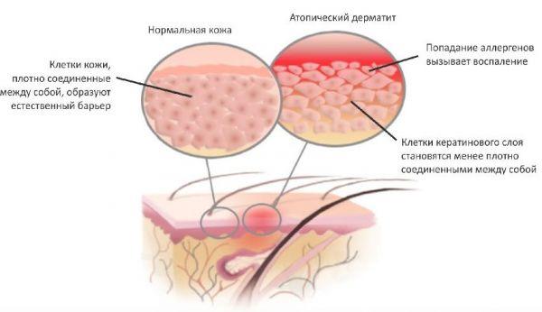Симптомы атопического дерматита