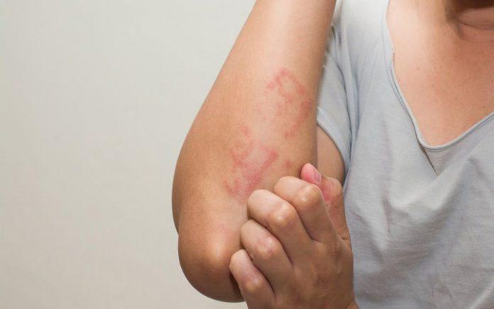 Аллергическая реакция на антибиотик