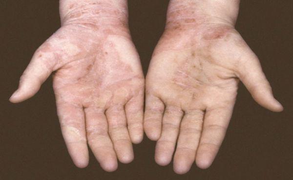 Микотическая экзема на руках