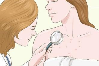 аллергия на груди