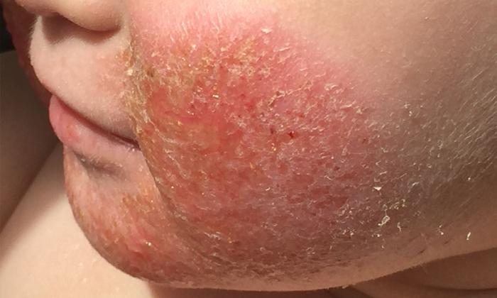 Аллергическая реакция на сою