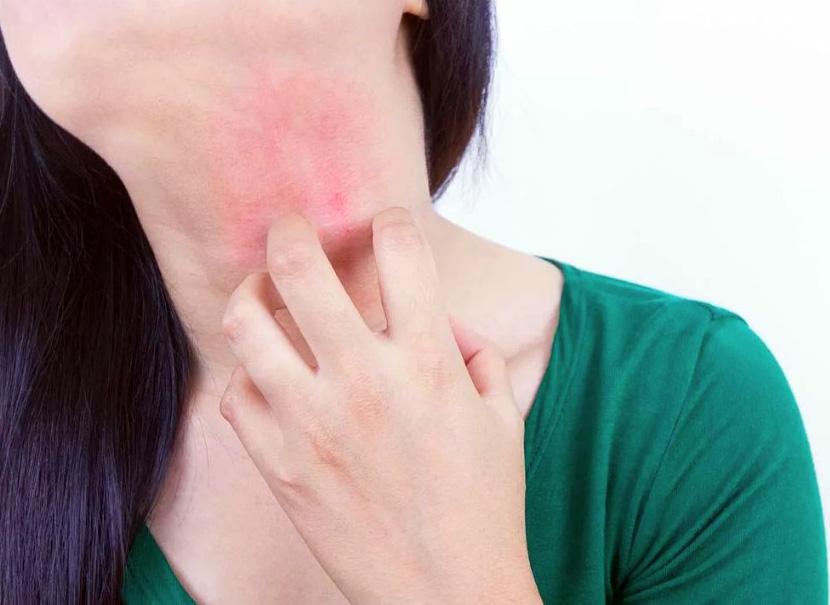 Аллергия на алоэ
