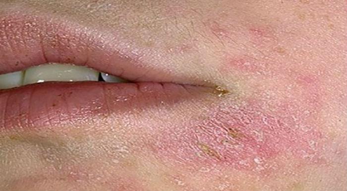 Покраснение и отек области губ
