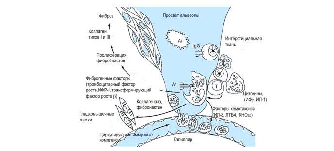 Патогенез идиопатического фиброзирующего альвеолита