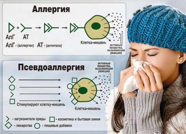 Отличия аллергии и псевдоаллергии