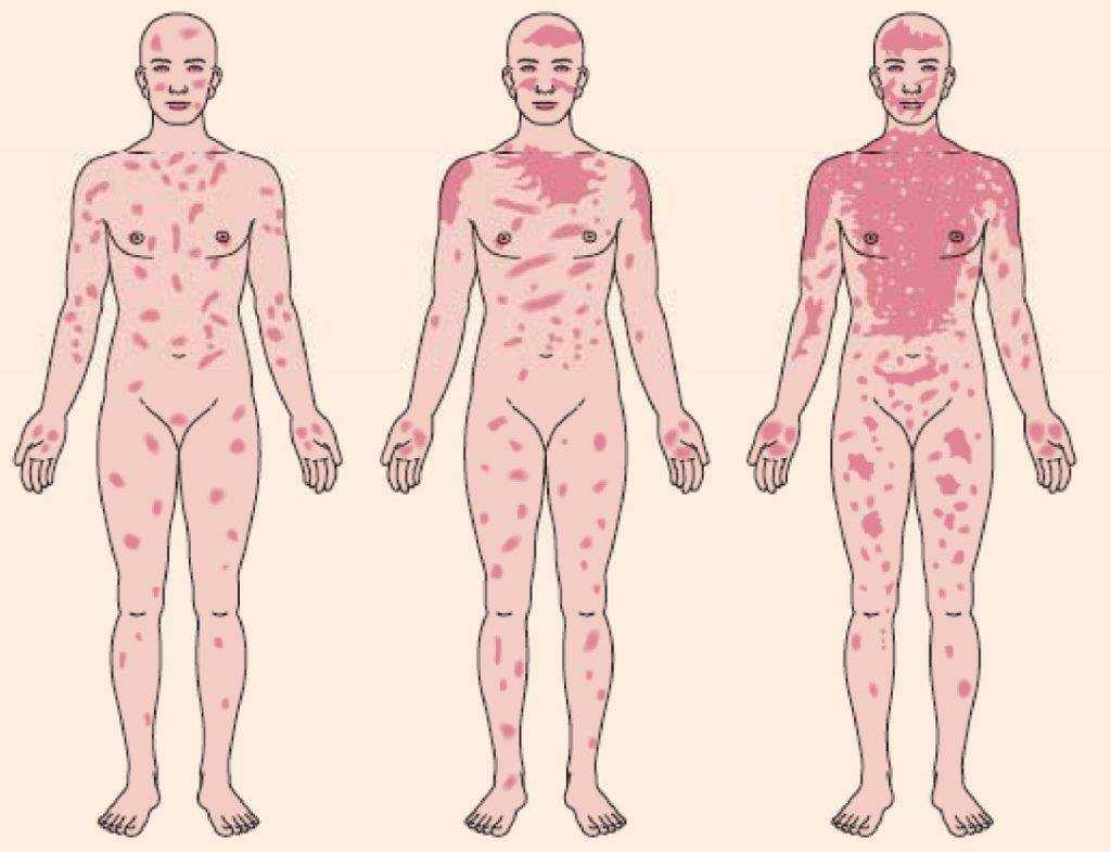 Синдром Стивенса-Джонсона