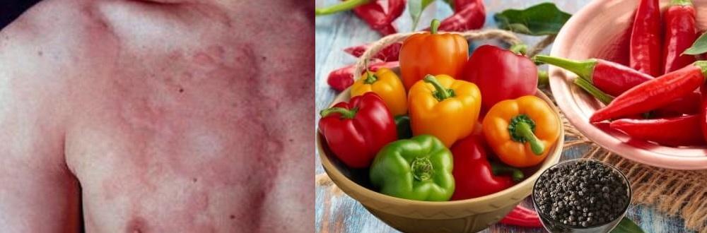 Высыпания при аллергии на перец