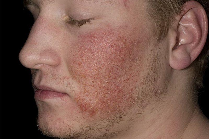 Дерматит на лице человека