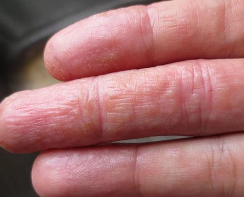 Пораженные пальцы рук