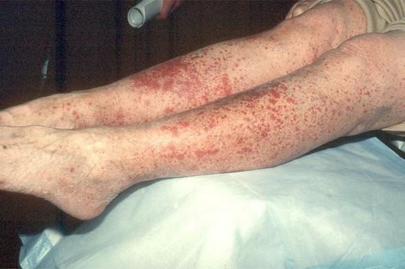 Аллергический васкулит на ногах
